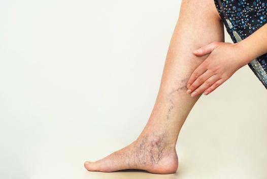 problemy z nogami